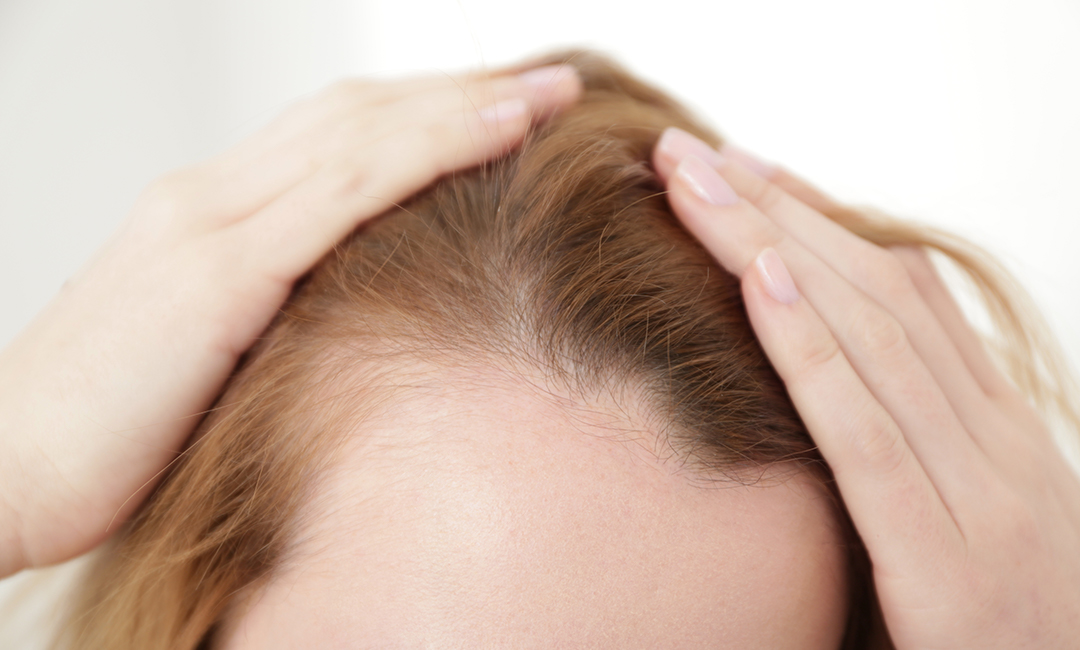 Dermatologie-Haarausfall